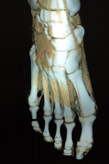 Right Foot X-Ray Skeleton