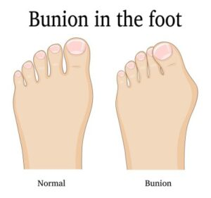 Bunion in the foot