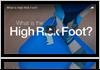 High Risk Feet Treatment in Sugar Land
