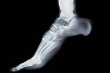 Diagnostic Tools Used for Podiatry in Sugar Land