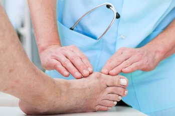 Bunion Treatment in Sugar Land