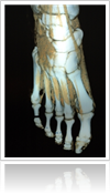 Right foot skeleton