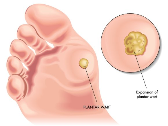 What Is A Plantar Wart Advanced Foot Ankle Specialists